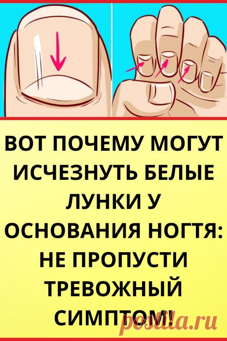 Вот почему могут исчезнуть белые лунки у основания ногтя: не пропусти тревожный симптом!