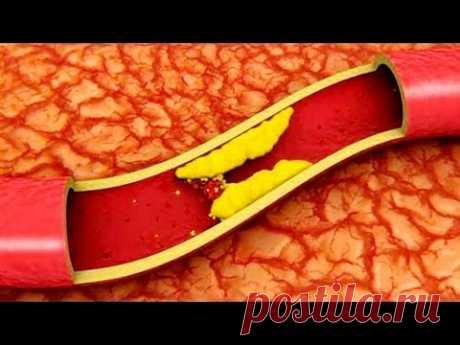 Чистим сосуды головы и тела. Атеросклероз. Как почистить и оздоровить сосуды? А ты это знал?