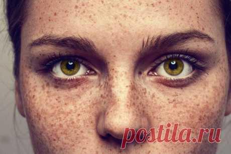 Пигментные пятна на лице: причины, лечение Каждая представительница прекрасного пола стремится иметь красивую и здоровую кожу на протяжении всей жизни. Но на пути к этой мечте нередки такие препятствия, как пигментные пятна на лице. От них быв...
