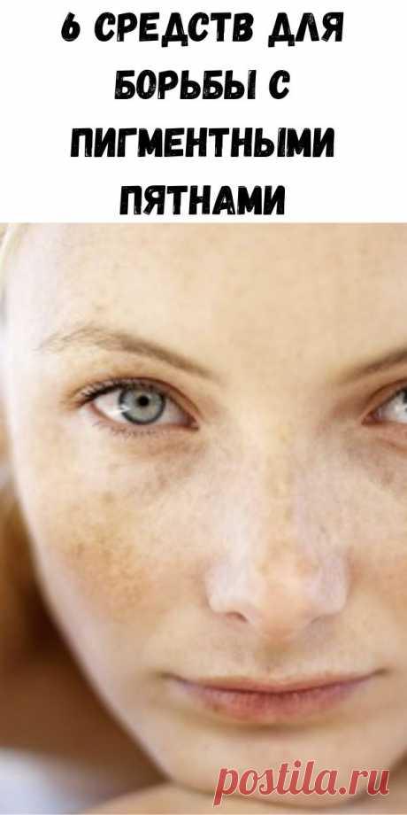 6 средств для борьбы с пигментными пятнами - Советы для женщин
