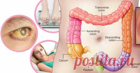 7 ранних предупреждающих признаков рака толстой кишки. Большинство людей упускают это! - Полезные советы красоты
