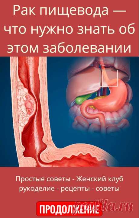 Рак пищевода — что нужно знать об этом заболевании