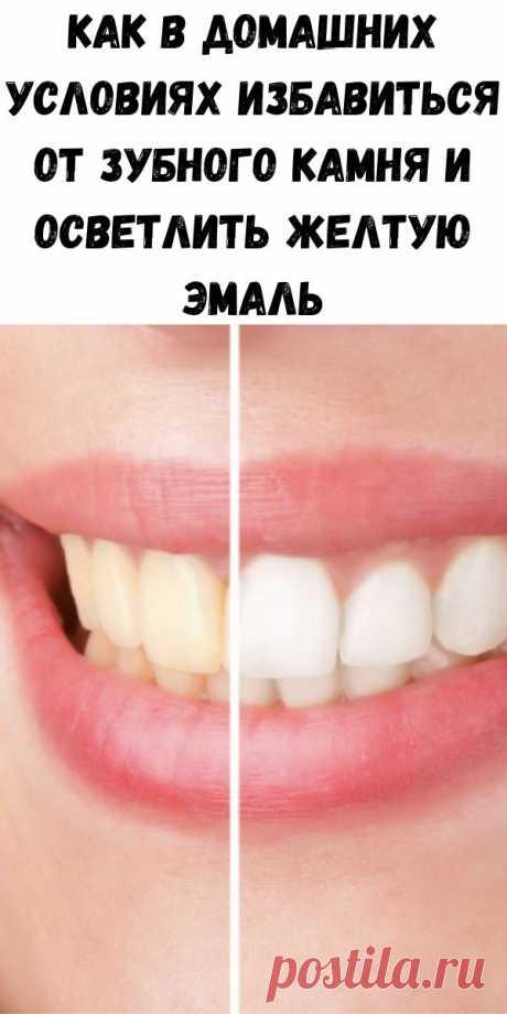 Как в домашних условиях избавиться от зубного камня и осветлить желтую эмаль - Советы для женщин