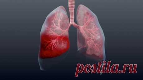 Осторожно, пневмония! Как выявить на ранней стадии и быстрее выздороветь - Интересный блог Пневмония или воспаление легких – опасное заболевание органов дыхания. Зачастую оно развивается как осложнение после перенесенной вирусной или