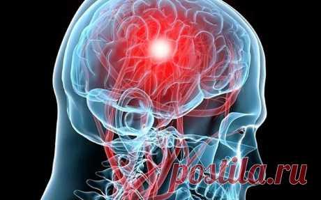Учёные заявляют, что аспирин провоцирует кровоизлияние в мозг