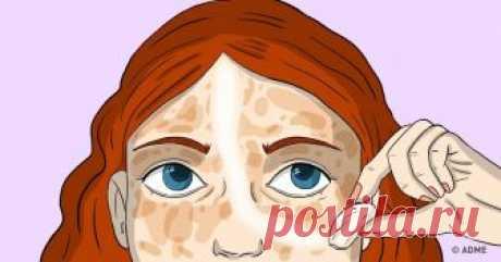 10средств для кожи, которые стирают пигментные пятна как ластик Основными причинами возникновения пигментных пятен могут быть воздействие ультрафиолетового излучения, возрастные изменения, хронические заболевания печени ипочек, последствия акне, беременность, заболевания кожи (экзема, дерматит), витаминный дисбаланс, заболевания желудочно-кишечного тракта. Ксожалению, невсе могут похвастаться идеальным тоном лица. Нонестоит отчаиваться раньше времени, ведь мыпригото...