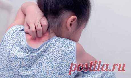 Псориаз баладан қалай басталады, қалай диагноз қойылады. Балалардағы псориазды емдеу. Диета. Псориазмен қалай өмір сүруге болады.