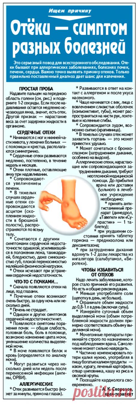 Отеки - симптом разных болезней
