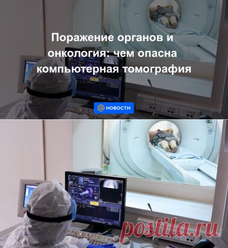 Поражение органов и онкология: чем опасна компьютерная томография - Новости Mail.ru