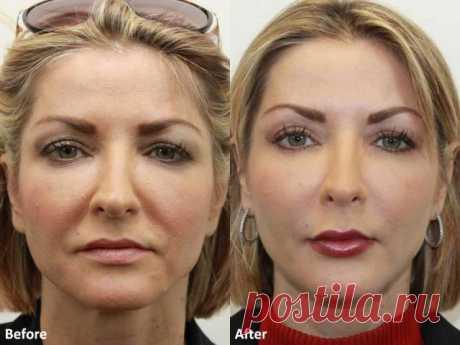 Даже самая дряблая кожа лица подтянется после этой процедуры! Делай это раз в неделю   Naget.Ru