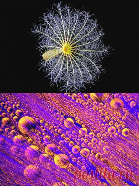 Макрофото микроскопического мира внутри человека и не только | Наука и жизнь