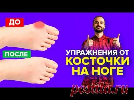 Упражнения от косточки на ноге, гимнастика для большого пальца ноги / Вальгусная деформация.