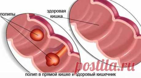 Что такое полипы в кишечнике... Что такое полипы в кишечнике? Это доброкачественные новообразования, образующиеся из железистого эпителия и имеющие широкое основание или ножку. Заболевание в основном протекает бессимптомно. Признаки появляются при увеличении объема полипов...