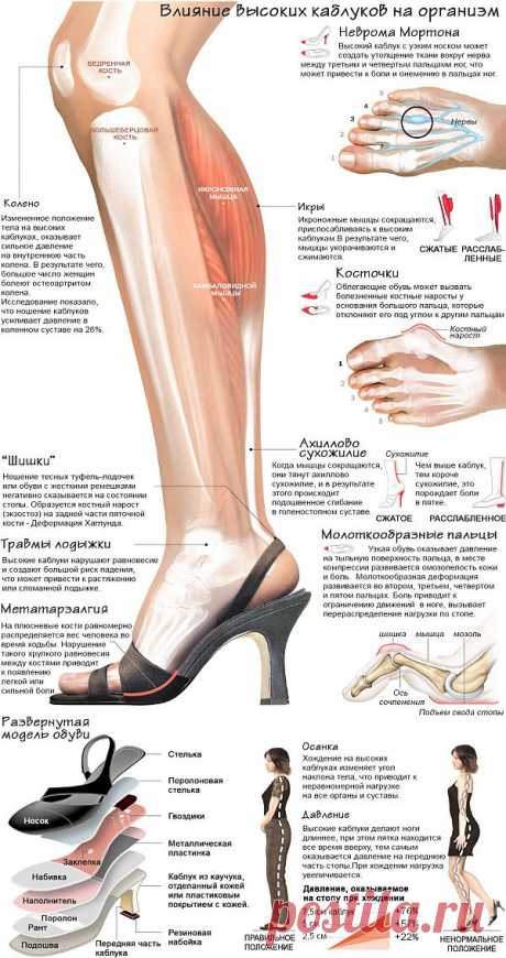 ИНФОГРАФИКА: как высокие каблуки влияют на ваше здоровье | Лайфхакер