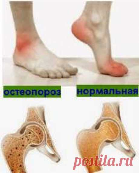 Лечение остеопороза | ЗДОРОВЫЙ ДОМ Лечение остеопороза. Основное коварство заболевания, как сказано выше, в его незаметности. То есть с остеопорозом можно жить долго, даже не подозревая ...