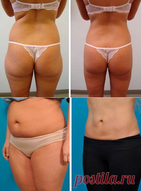 Минус 25 кило за месяц: Новый ЖИРОСЖИГАТЕЛЬ превзошел липосакцию