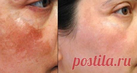 Натуральные средства для борьбы с тёмными пятнами на коже Меланин — это пигмент, который делает кожу темнее. Снизить уровень меланина можно в том числе с помощью натуральных средств, о которых и пойдет речь в статье.