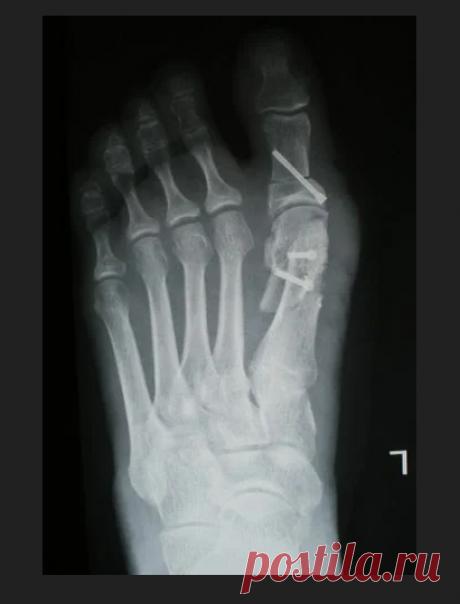 «Вальгусная деформация большого пальца стопы: лечение без операции  Лечение вальгусной деформации большого пальца стопы без операции возможно. Но это напрямую зависит от стадии развития заболевания, возраста и состояния пациента. В качестве консервативных мер применяют массаж, ЛФК, физиотерапию, медикаменты. Также необходимо использовать ортопедические приспособления. артрозом; искривлением позвоночника; плоскостопием; остеохондрозом; нарушением фор...