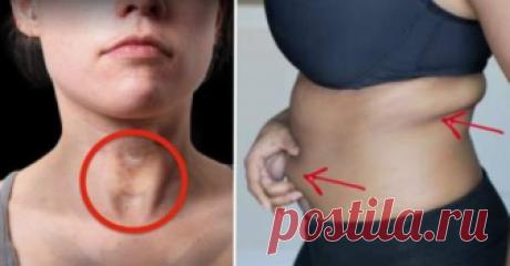 8 признаков проблем со щитовидной железой, о которых вы никогда бы не подумали
