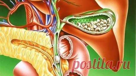 ТОП-9 натуральных средств для лечения желчнокаменной болезни...  Большинство людей с желчными камнями до конца их жизни даже могут не догадываться о своем заболевании. Но когда камень препятствует оттоку желчи, это может вызывать симптомы желчнокаменной болезни. К…
