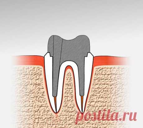 Не спешите удалять корни зубов, они могут очень пригодиться   записки зубного детектива   Яндекс Дзен