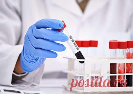 Разбираемся в анализе крови