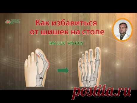 Как избавиться от косточки или шишки на большом пальце стопы / Hallux Valgus - YouTube