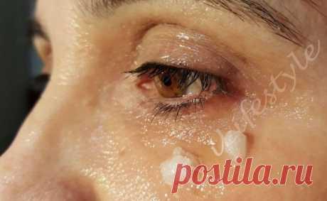 Она начала прикладывать примочки из кокосового масла вокруг глаз. 5 минут спустя … и невероятно!