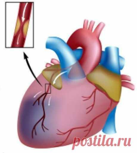 «Статины от холестерина: список препаратов по поколениям и цены Статины - это гиполипидемические средства, которые способны контролировать выработку клетками печени холестерина. Побочные эффекты, цена и сколько принимать Запор кишечника; Диарея, которая может привести к обезвоживанию организма; Отсутствие аппетита; Рвота после приема пищи; Анорексия; Не ощущение вкуса еды; Метеоризм; Воспалительный процесс в поджелудочной железе — панкреатит; Ане...