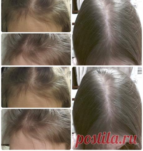 Простые средства, которые восстановят рост, блеск и красоту волос! - Полезные советы красоты