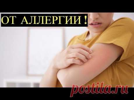 Этот Копеечный препарат из Аптеки вылечит Аллергию за считанные дни! Забытый советский метод Лечения - YouTube