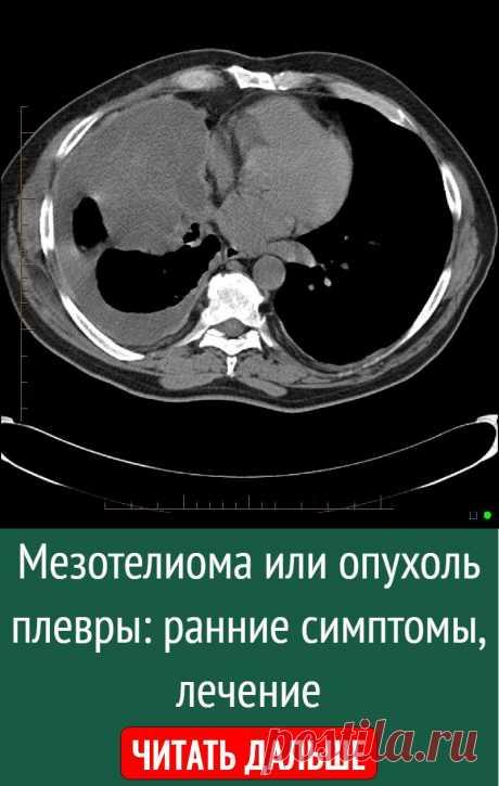 Мезотелиома или опухоль плевры: ранние симптомы, лечение