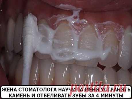 Домашнее отбеливание зубов ЖЕНА СТОМАТОЛОГА НАУЧИЛА МЕНЯ УСТРАНЯТЬ ЗУБНОЙ КАМЕНЬ И ОТБЕЛИВАТЬ ЗУБЫ ЗА 4 МИНУТЫ Жена стоматолога научила меня устранять зубной камень и отбеливать зубы за 4 минуты Голливуд задал моду на белоснежную улыбку, которая считается признаком здоровых зубов и красоты. Людей часто беспокоит вопрос: прибе