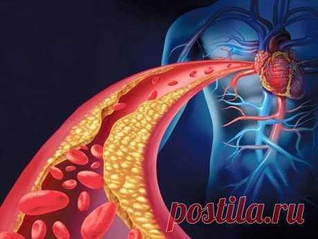 """Как почистить закупоренные артерии с помощью питания... - Познавательный сайт ,,1000 мелочей"""" - медиаплатформа МирТесен Кровеносные сосуды являются основой кровеносной системы, переносят кровь от сердца к внутренним органам, головному мозгу человека. Их состояние влияет на показатели артериального давления и общее самочувствие. При ухудшении кровотока ткани перестают получать кислород и питательные вещества,"""