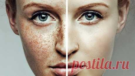 6 чудодейственных средств для борьбы с пигментными пятнами Меланоциты – клетки, отвечающие за основную пигментацию человеческой кожи. Эти клетки производят тёмный и самый главный пигмент нашей кожи под названием меланин. Однако очень часто встречаются такие случаи, когда по определённым причинам в некоторых участках кожи меланоциты вырабатывают избыточное...