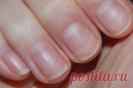 Полоски на ногтях их причины и лечение