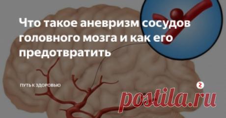Что такое аневризм сосудов головного мозга и как его предотвратить Аневризма сосудов  головного мозга – это заболевание, при котором в сосудах возникает  образование. Уплотнение способно увеличиваться в размерах. Как? Оно  наполняется кровью. Сама по себе аневризма не опасна. Единственное – она  давит на ткани. Но безопасно уплотнение только до момента разрыва. После  разрыва внутрь тканей мозга попадает кровь. Подобный процесс называют  кровоизлиянием. Но только