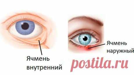 Как бороться с ячменем за ночь Каждый из нас получает волдыри в той или иной форме в разных частях тела. Красные бугорки, которые растут на или под веками называют ячменем. Это самое распространенное заболевание глаз, которое может…