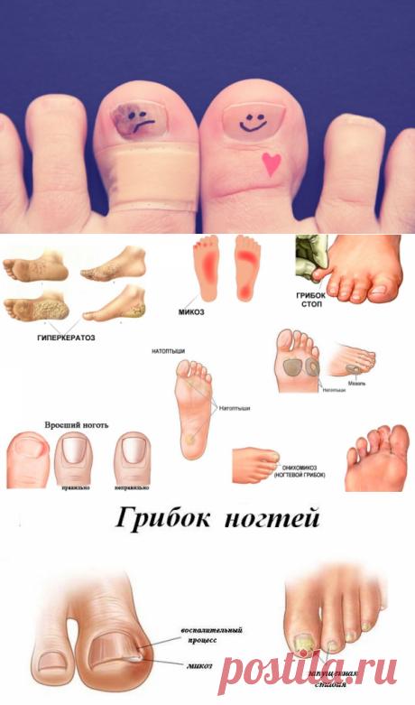 Ногтевой грибок: его распознавание и лечение.