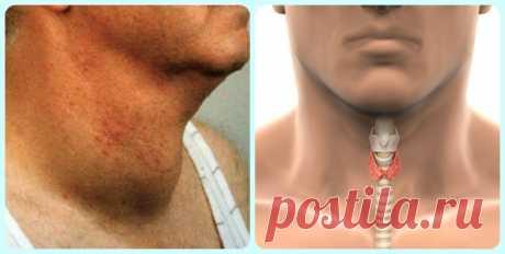 Как быстро избавиться от проблем с щитовидкой! Натуральный и эффективный способ! - Счастливые заметки