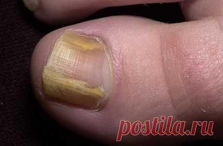 """Как в домашних условиях избавиться от грибка ногтей Несколько лет назад мне """"посчастливилось"""" подцепить грибок на ногтях. Кто с ним сталкивался, знает, что с этой гадостью не так уж и просто справится. Но мне повезло, потому что мой отец знал как с ним"""