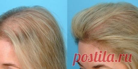 Сильнейшая маска для роста и против выпадения волос Дача и огород