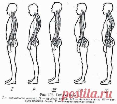 Комплекс упражнений для улучшения осанки и при боли в спине