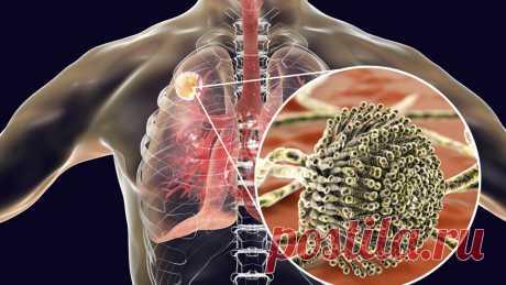 Грибок в легких: причины, симптомы, лечение | ОкейДок | Яндекс Дзен