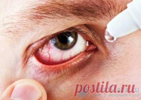 Популярные капли от покраснения глаз
