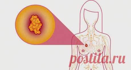 Ученые обнаружили: эти 2 ингредиента излечат даже рак молочной железы! - Стильные советы
