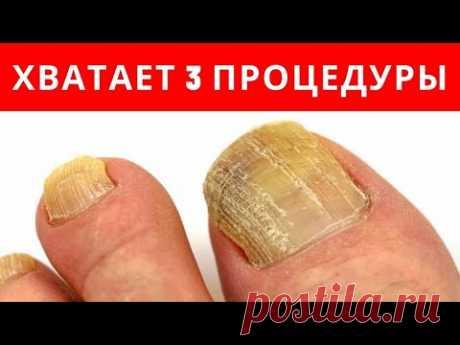 ХВАТАЕТ 3-х ПРОЦЕДУР от ГРИБКА НОГТЕЙ - YouTube