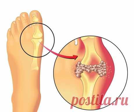 Быстрое удаление мочевой кислоты, чтобы предотвратить подагру и боль в суставах Подагра — это тип артрита, который характеризуется интенсивной болью в суставах и особенно влияет на суставы вблизи большого пальца ноги. Атаки обычно происходят ночью и сопровождаются отеком, теплом в области и покраснением