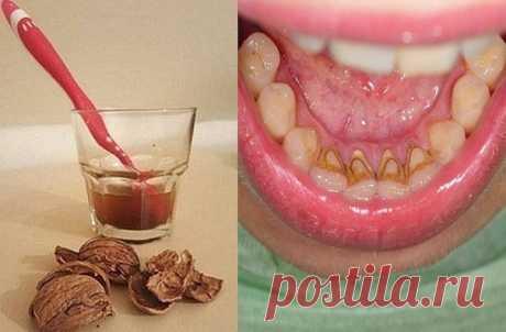 #Cекреты_здоровья# Как избавиться от зубного камня при помощи 1 простого средства  Коричневый или желтый налет на зубах можно удалить дома! Зубной камень — распространенная проблема, и современная стоматология предлагает множество способов его устранения. Но существует метод, который работает не хуже, при этом экономя твои средства!  Как удалить зубной камень и налет  ТЕБЕ ПОНАДОБИТСЯ  40 г скорлупы грецких орехов 1 ст. воды  ПРИМЕНЕНИЕ Отвари скорлупу в воде в течение 20 ...