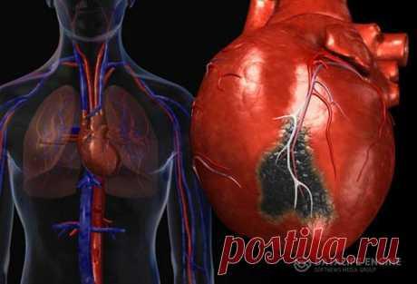 Заболевание кардиосклероз и лечение болезни  Термин «кардиосклероз» с греческого дословно переводится как «сердце» и «соединительная ткань». Кардиосклероз – это формирование в миокарде вместо сердечной ткани рубцовой (соединительной) ткани, что может стать причиной деформации сердечных клапанов.